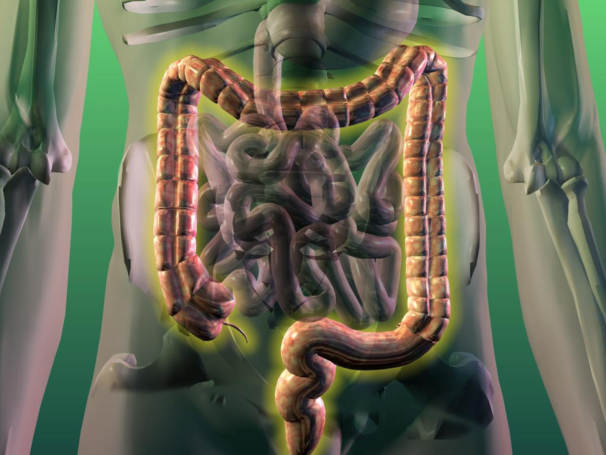 McClatchy-Tribune files Colon cancer is cancer of the large intestine, or colon, which is the lower part of the digestive system. Rectal cancer is cancer of the last several inches of the colon. Together, they're often referred to as colorectal cancer.