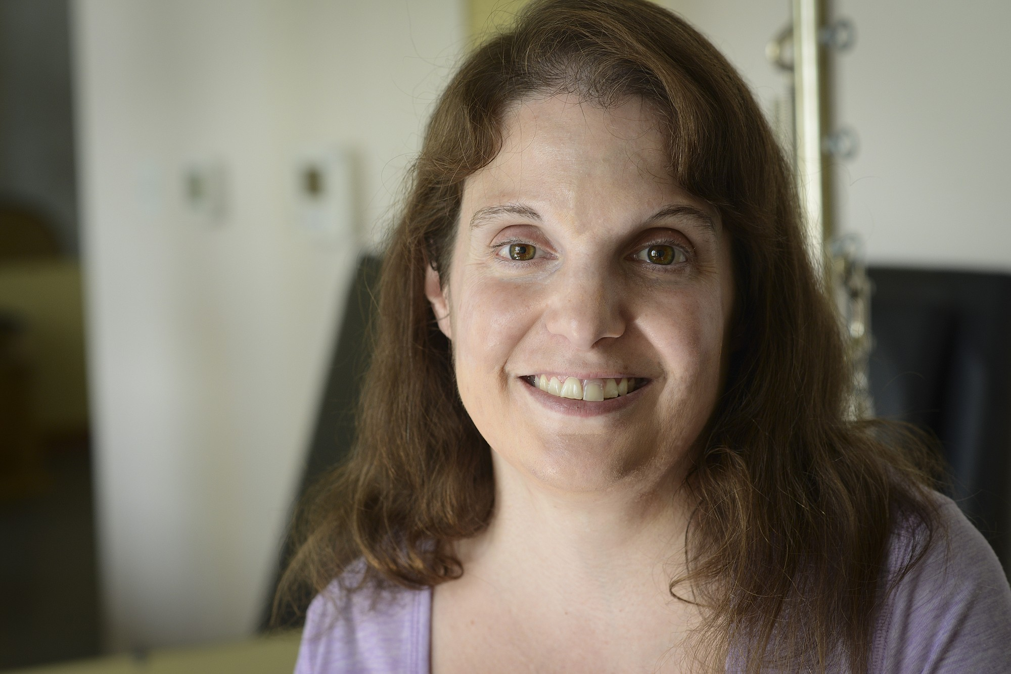 Laura Kotsovos, 39, is training to be a Pilates instructor, despite having cerebral palsy that affects the right side of her body.