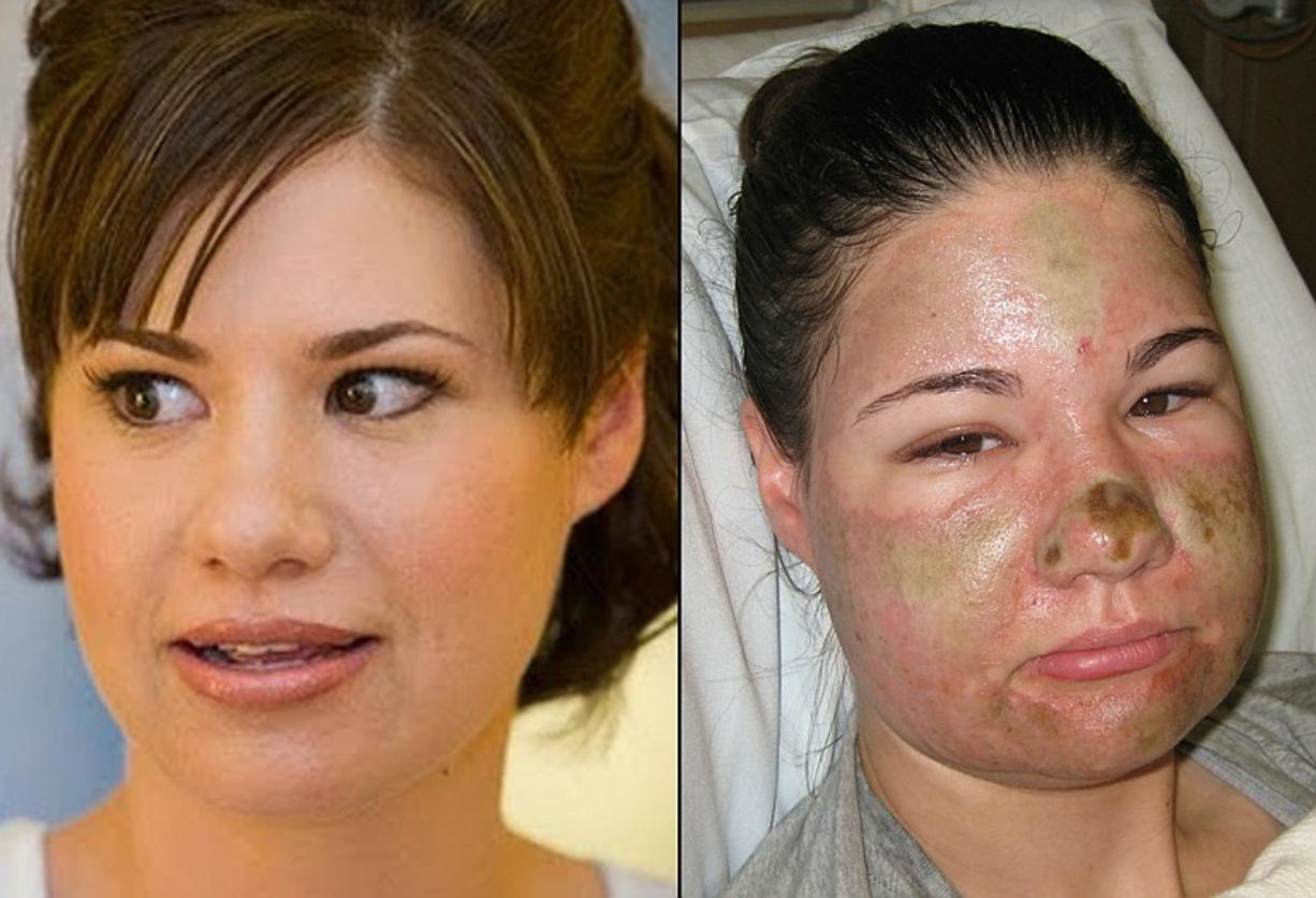 Bethany Storro before and after her self-inflicted facial injuries.