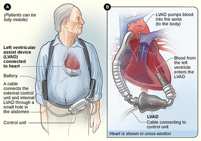 Pump keeps Vancouver man\'s heart working as he awaits transplant ...
