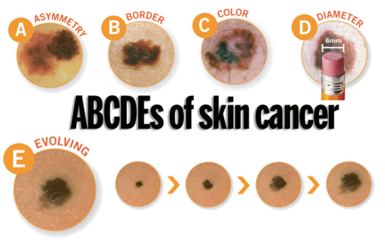 Dermatologists Urge People To Learn The Abcdes Of Skin Cancer Columbian Com
