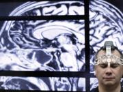 BrainScope employee Doug Oberly wears a brain scanning headset at the NFL owners' meeting in Boca Raton, Fla., Tuesday, March 22, 2016. The headset and mobile app can quickly and easily allow clinicians to determine whether patients have sustained a traumatic brain injury (TBI), the company says. (AP Photo/Luis M.