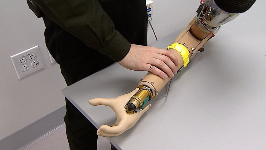 new improved prosthetic hand creates a buzz the columbian