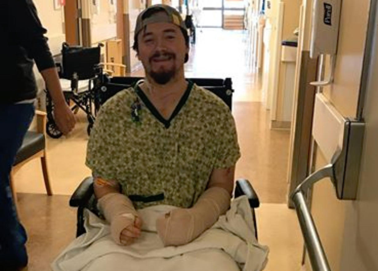Alex Lovell, 29, of Camas is pictured at an area hospital where he's recovering from injuries suffered March 3, 2018, when his girlfriend, Emily Javier, allegedly attacked him with a samurai sword at their shared home.