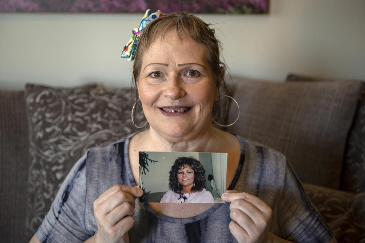 Debra Buckley poses for a portrait as she holds a photo of herself from 1992, which shows her smile prior to dental infections, at her home in Vancouver. Buckley needs to raise $15,000 more to afford dental work that could prevent deadly infections, but she can't work because of her medical complications and might not ever be able to afford the treatment.