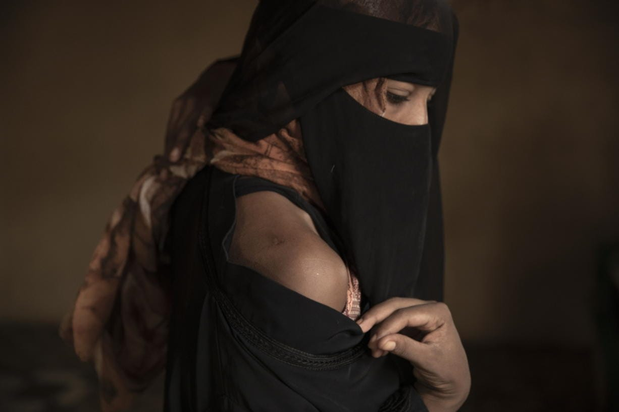 "In this July 21, 2019 photo, Ethiopian migrant Eman Idrees shows her shoulder with a wound from torture after being held and abused for eight months in a desert compound known in Arabic as a ""hosh,"" run by an Ethiopian smuggler in Ras al-Ara, Lahj, Yemen."