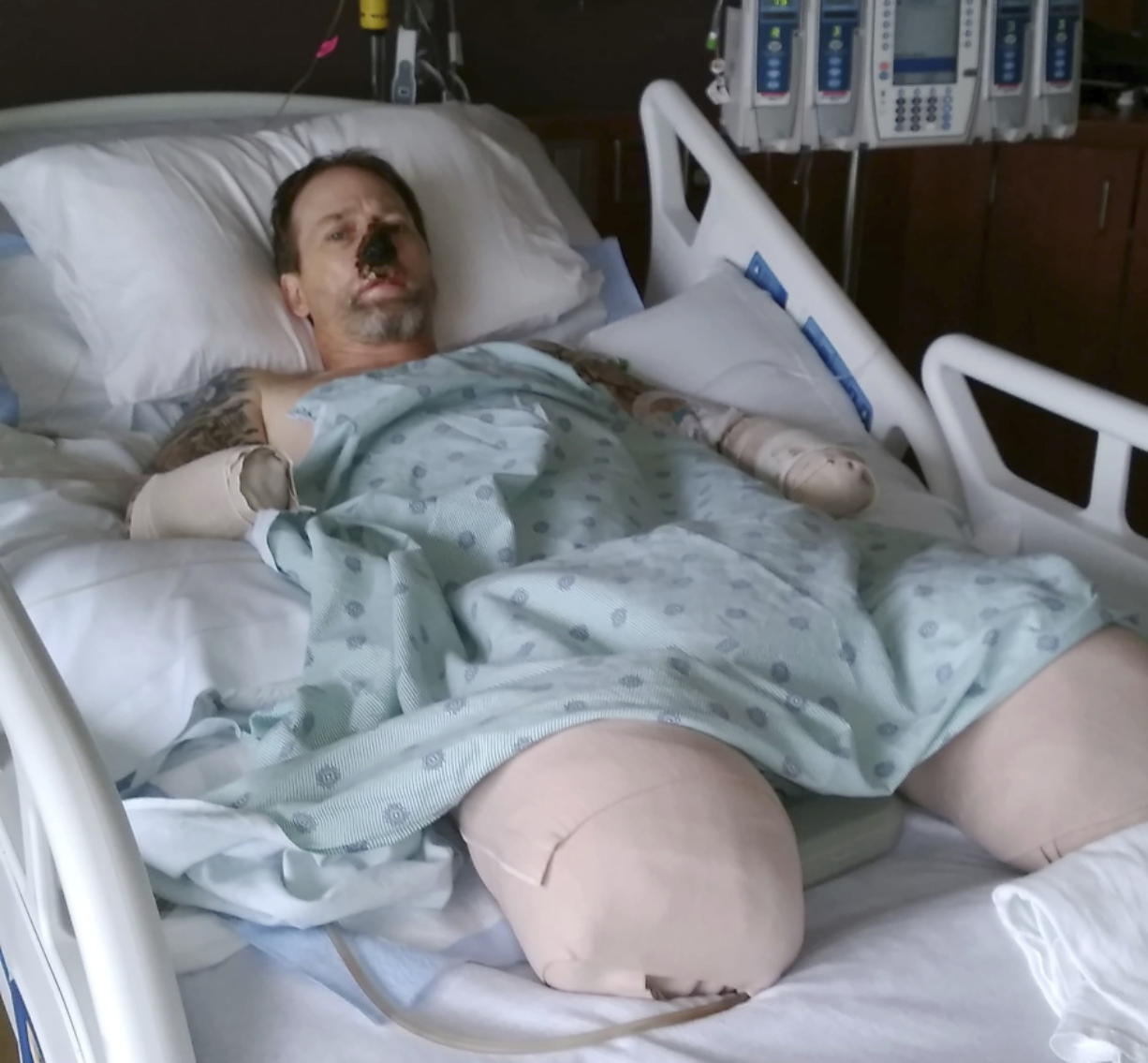 In this Aug. 2, 2018 file photo provided by Dawn Manteufel, Greg Manteufel lays in his hospital bed at Froedtert Hospital in Milwaukee. He lost parts of his arms and legs, as well as the skin of his nose and part of his upper lip from capnocytophaga, a bacteria commonly found in the saliva or cats and dogs which almost never leads to people getting sick, unless the person has a compromised immune system. Manteufel was perfectly healthy when he got sick in June of 2018. Over the last seven years, a team of researchers at Brigham and Women's Hospital in Boston, connected to Harvard Medical School, have tested other healthy people who were affected and developed a theory on why they were affected- a gene change in all the victims. (Dawn Manteufel via AP) (Carrie Antlfinger/Associated Press)