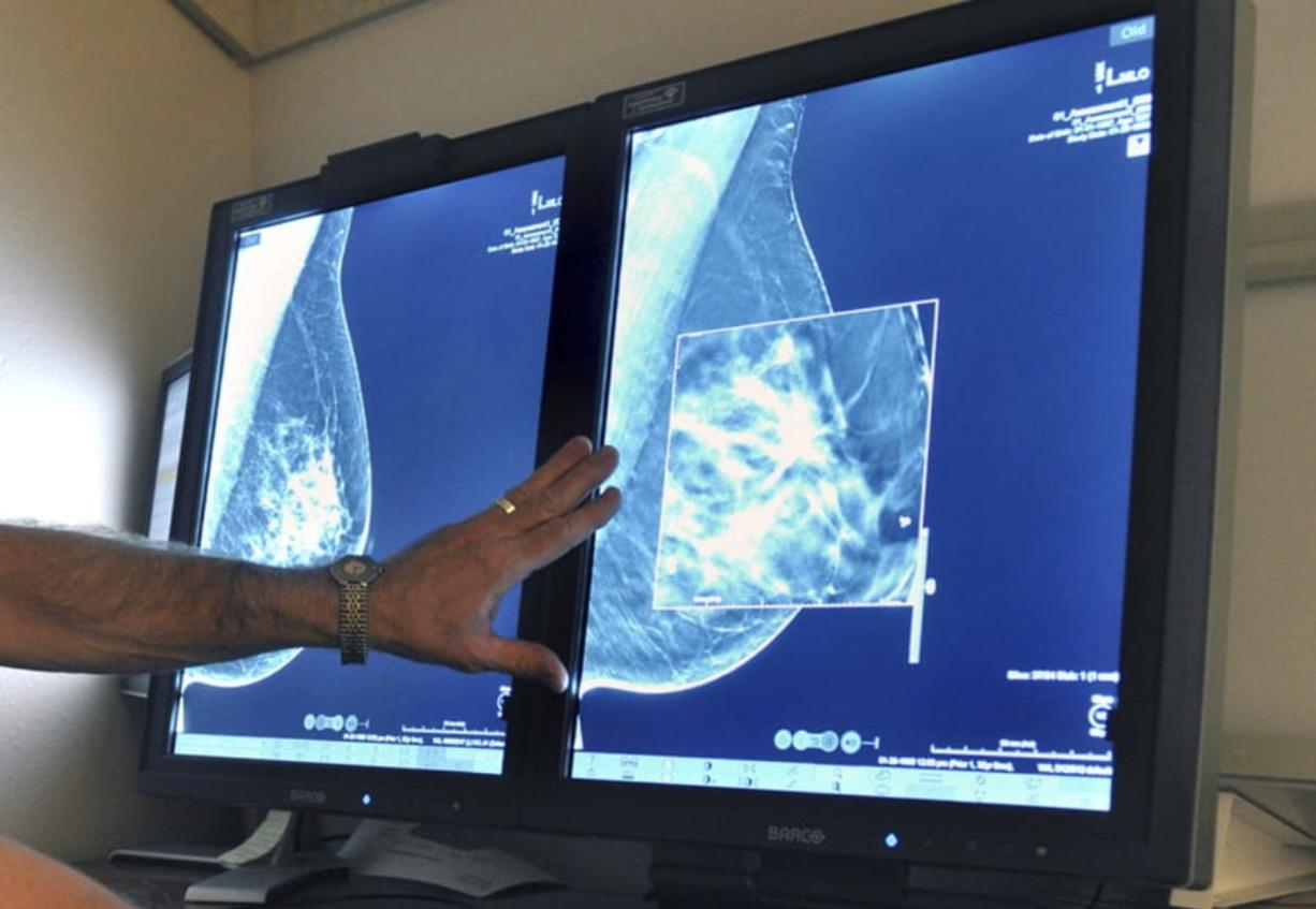 A new study suggests that adding MRIs to mammograms to screen women with very dense breasts may find more cancers but also gives a lot of false alarms. (Torin Halsey/Times Record News)