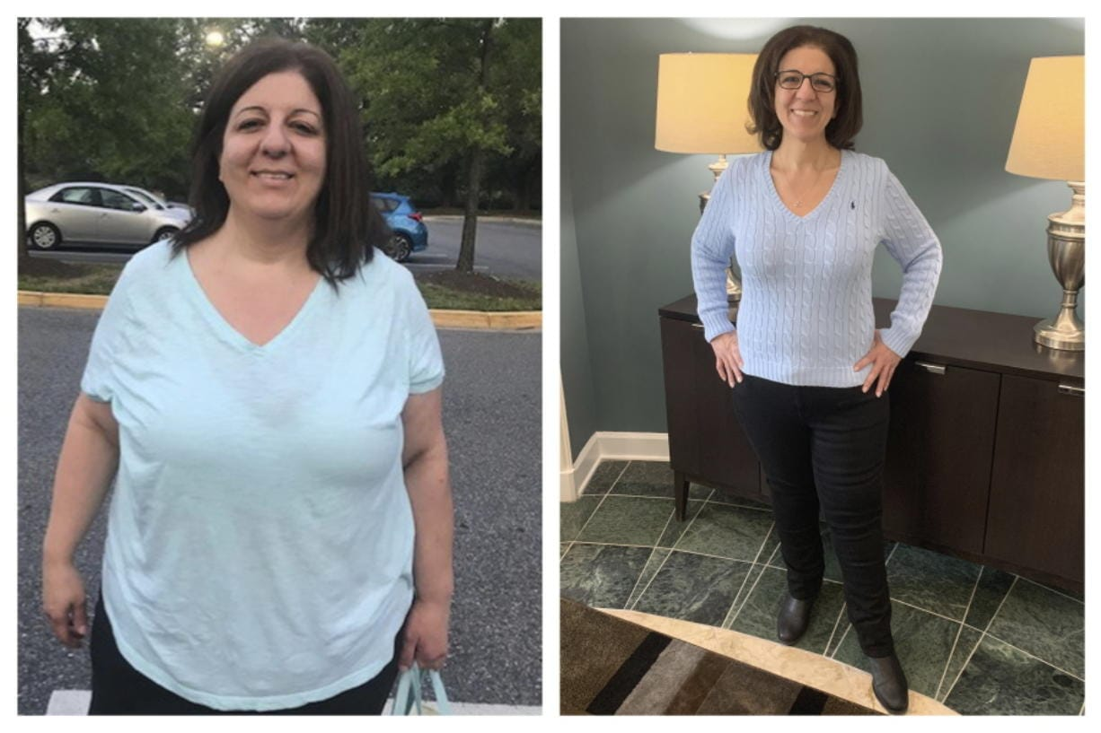 Weight loss surgery in spotlight   The Columbian