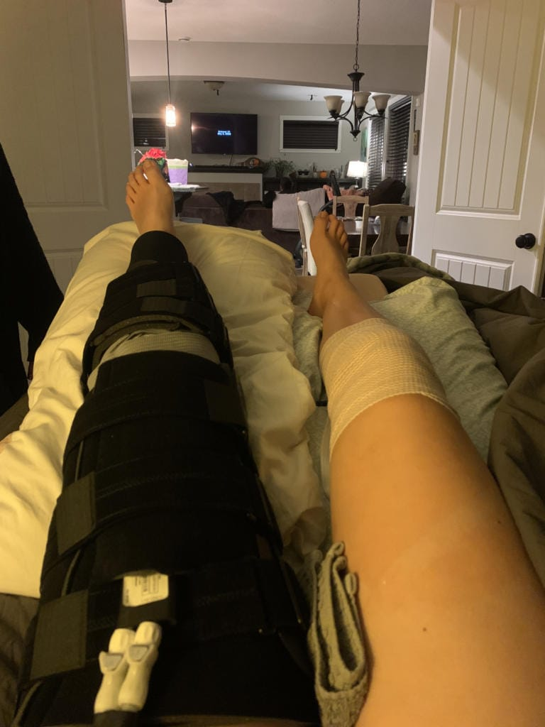 Image of Amelia Renner's surgically repaired left knee after ACL surgery in November, when the doctor had to go into her right knee to graft a good hamstring ligament to rebuild her left ACL (Photo provided by Renner family)