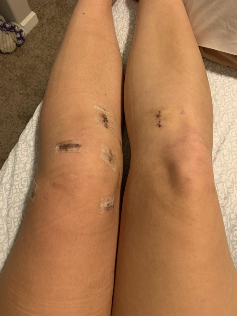 Amelia Renner's knees after her second surgery to repair her left ACL by grafting a hamstring tendon from her right leg (Photo provided by Renner family)