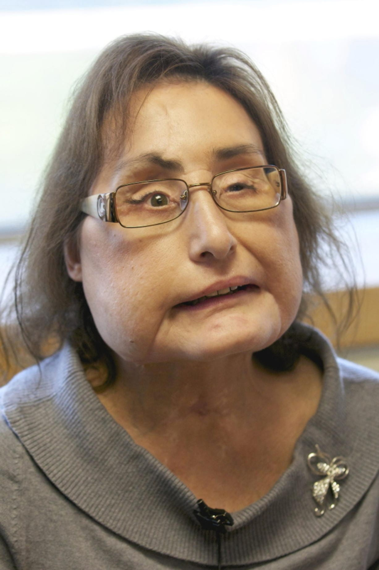 Connie Culp, the nation's first partial face transplant recipient, speaks Sept. 14, 2010 with the Associated Press at the Cleveland Clinic in Cleveland.