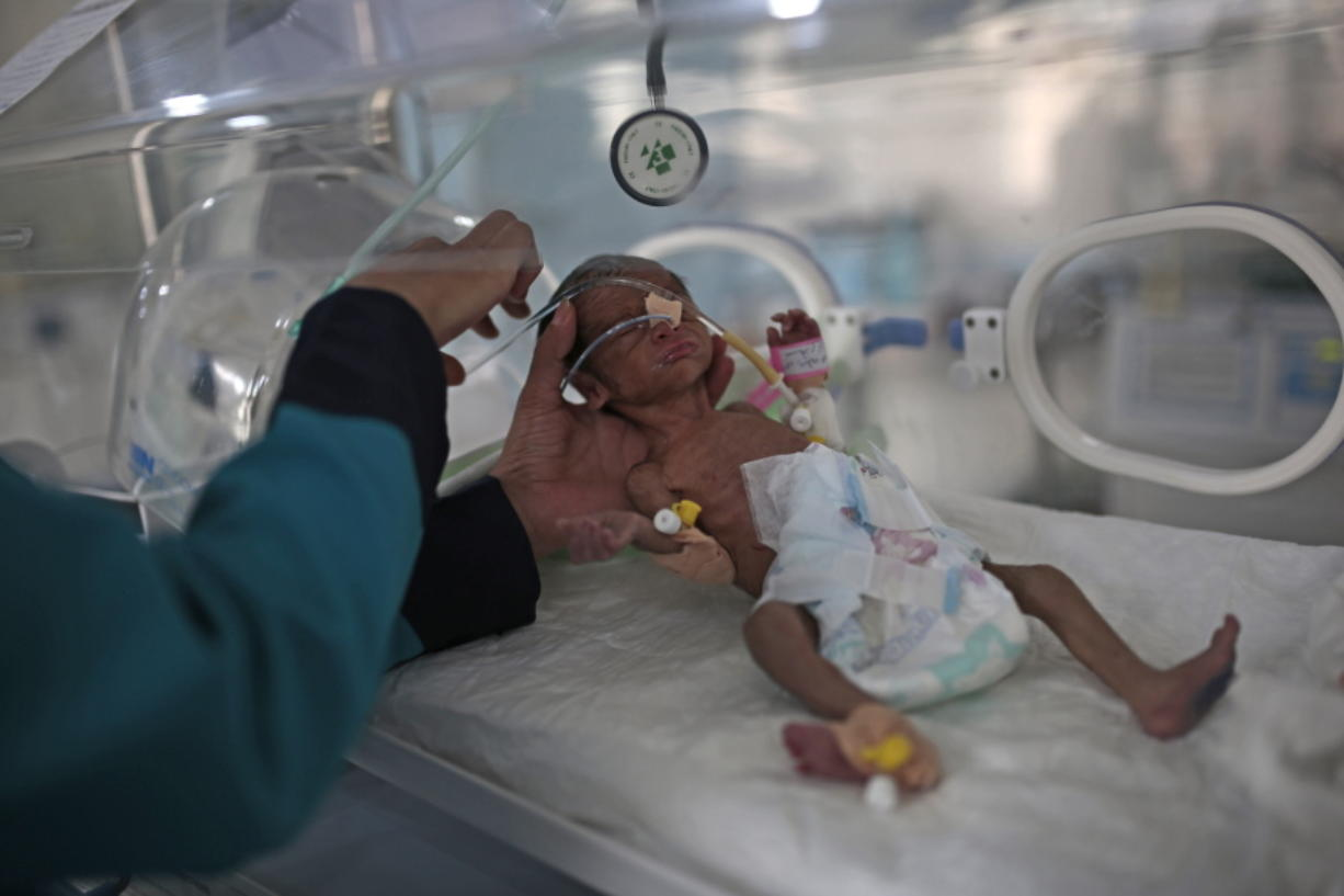 FILE - In this June 27, 2020 file photo, a medic checks a malnourished newborn baby inside an incubator at Al-Sabeen hospital in Sanaa, Yemen.  On Friday, Feb. 12, 2021, the United Nations is sounding the alarm over projections that more than 2 million Yemeni children are facing starvation this year.
